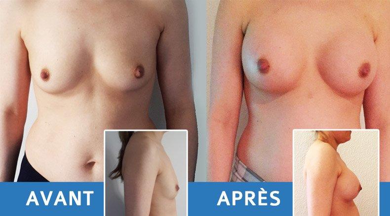 augmentation-seins-1