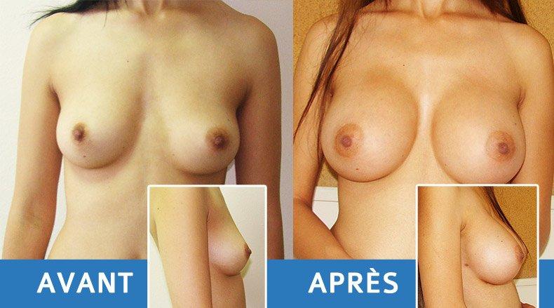augmentation-seins-2